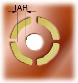 Inner annular ring